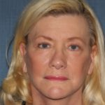 Facelift results after treatment at CT Facial Plastic Surgery