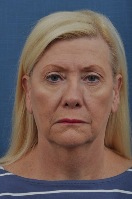 Patient before a facelift from Drs. Karter and Seeley